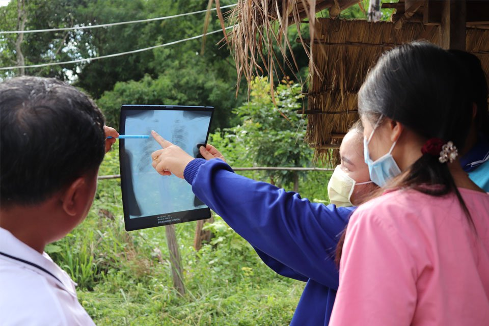 Active TB Case finding is saving lives in rural Laos